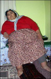 چاقی بدون ورزش