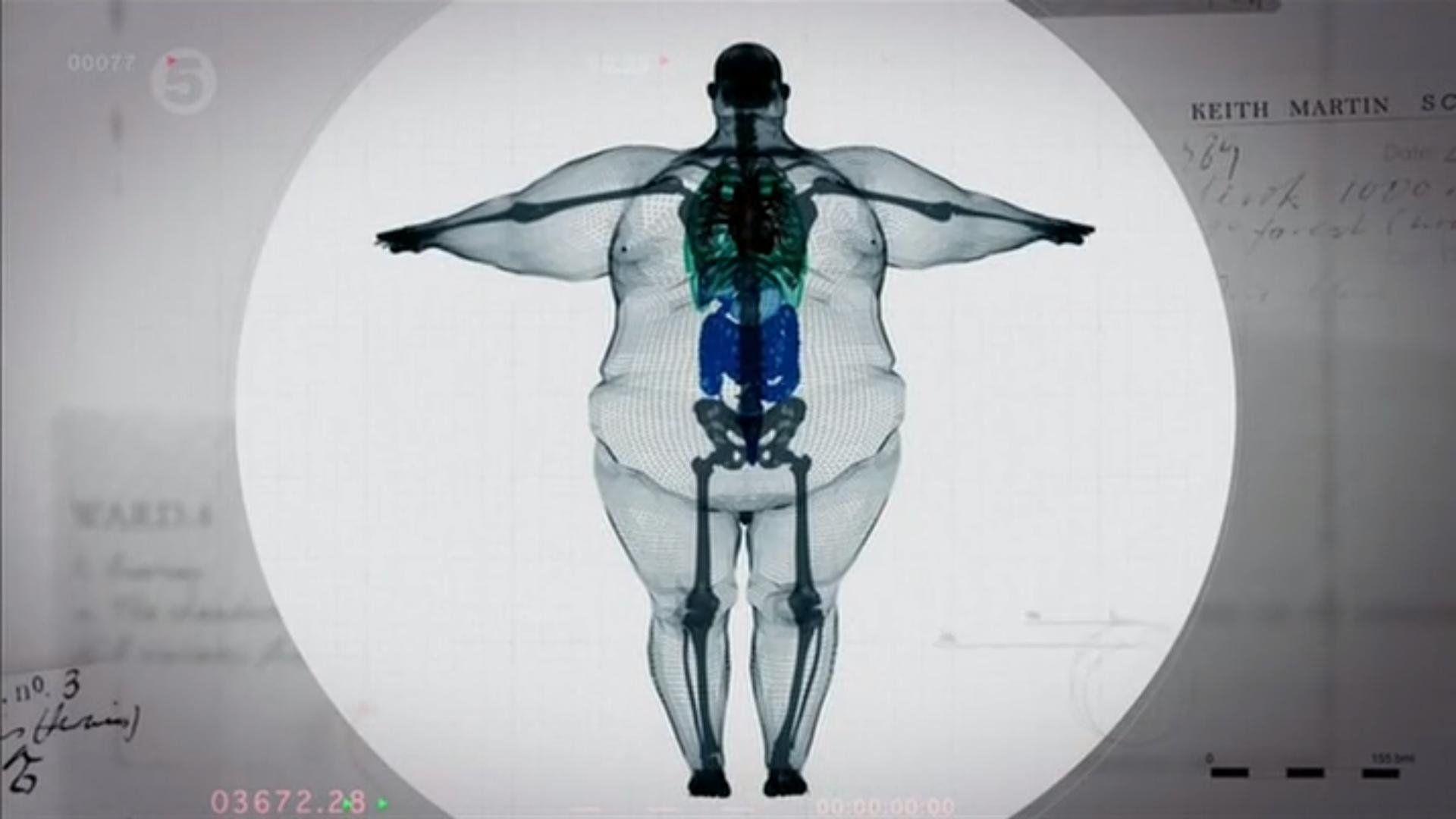 چرا چاق می شویم ؟