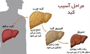 درمان کبد چرب با رژیم قلیایی در ۳۰ روز