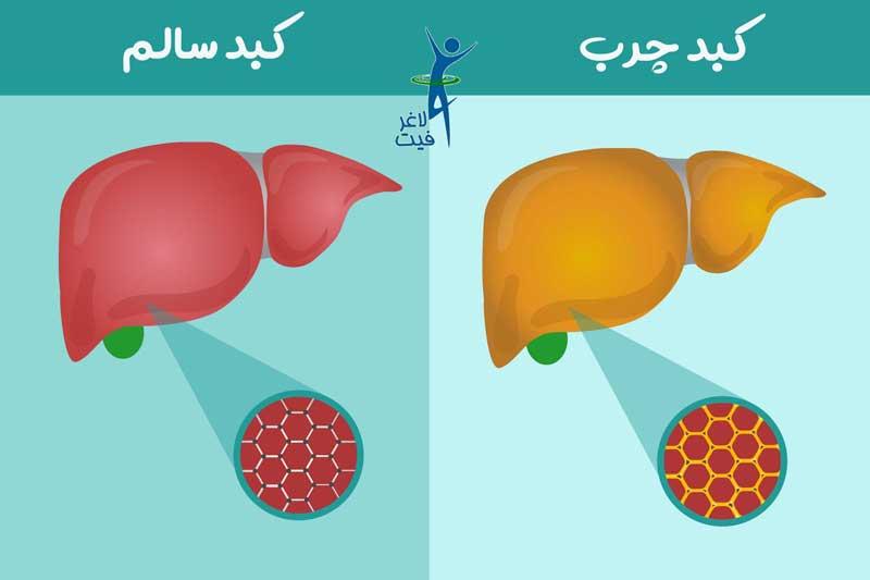 علائم کبد چرب چیست