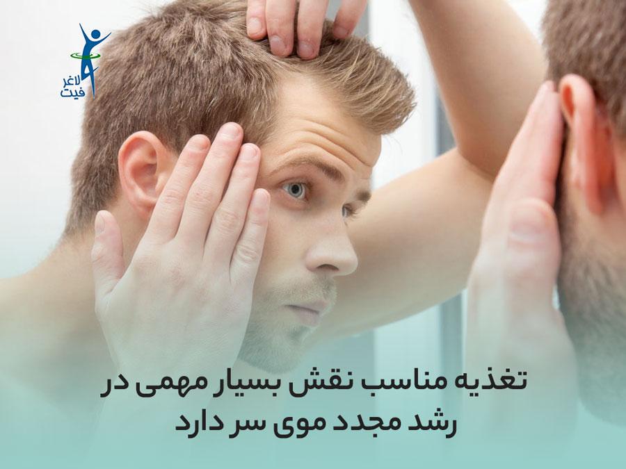 دلیل ریز موی سر چیست؟